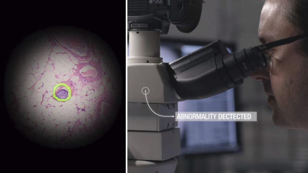 AI Storming Medical Image Analysis